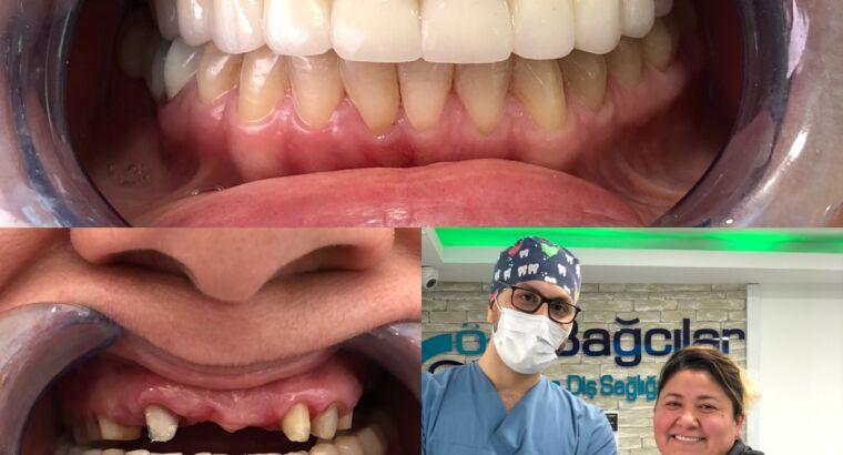 Русскоговорящий Стоматолог Вурал Исмаилов